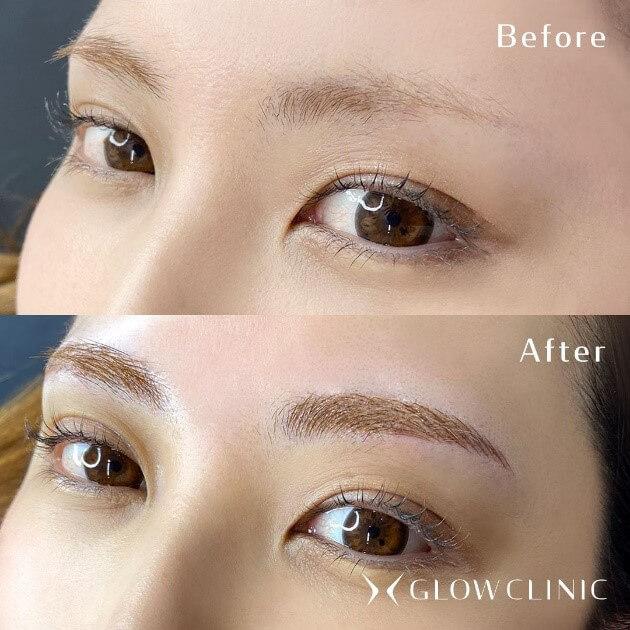 施術症例:薄眉からアーチ眉