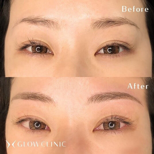 薄眉からアーチ眉へのデザイン症例②