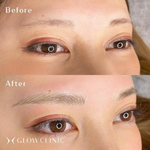 施術症例:薄眉からストレート眉へ