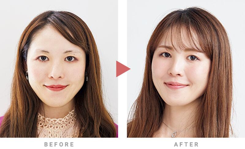 アートメイク前後の眉比較/顔の印象比較